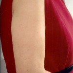 Flabby Upper Arms– Starting Point