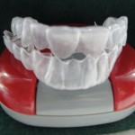 Invisalign- The First Three Weeks
