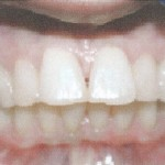 Invisalign-  Visible  Results After Just Six Weeks