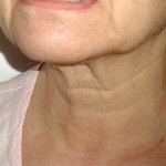 Neck News– The Three Part Neck Makeover