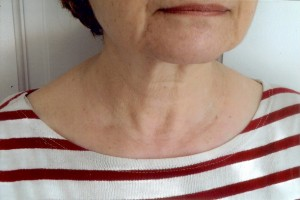 Neck After Botox
