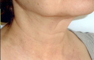 Godd anti-aging neck results after laser