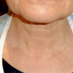 The Anti- Aging Neck Makeover