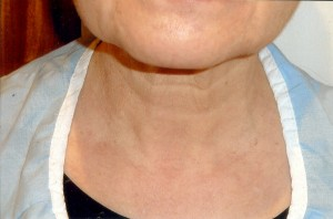 Neck before anti-aging treatment