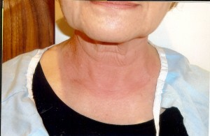 Neck is red  after anti-aging laser