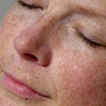 Hydroquinone- How Long Can I Use It? by Deb Chase