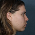 acne after treatment