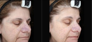 Visia before and after peel