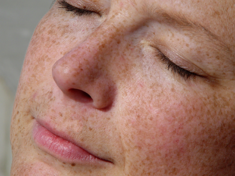 Hydroquinone How Long Can I Use It No Nonsense Beauty Blog